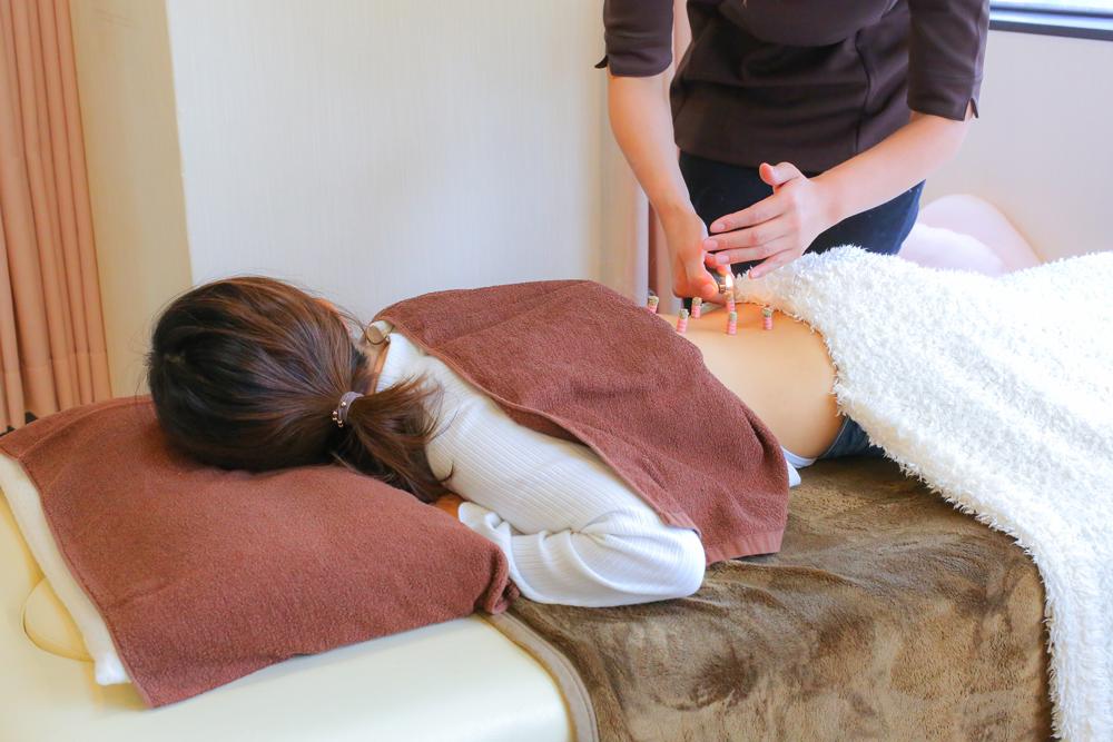 寝転んでいる女性が背中に鍼灸施術を受けている