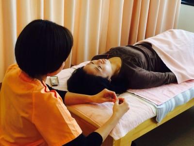 美容鍼体験会4