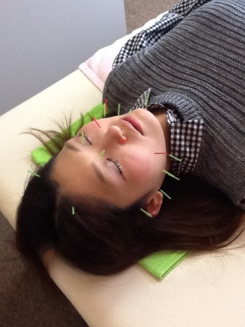 美容鍼灸の施術