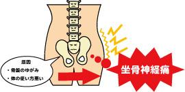 坐骨神経痛 施術